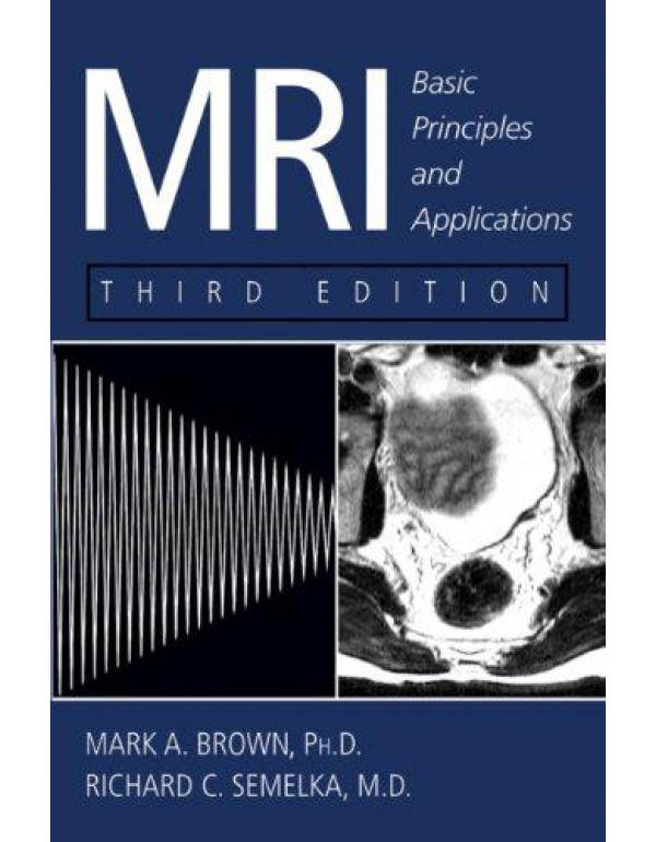 Mri: Basic Principles and Applications By Brown, Mark A.